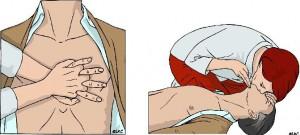 reanimatiehandelingen-1